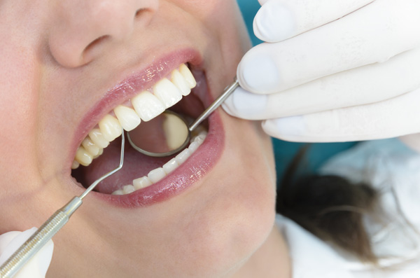 6 Reasons Why You Shouldn't Skip Your Teeth Cleaning Appointment