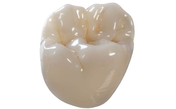 Which Dental Crown Type Should I Choose?