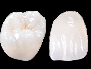 dental-crown-type-emax