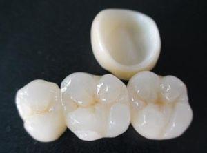 tooth-crown-type-zirconia