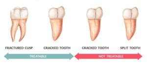 broken tooth types