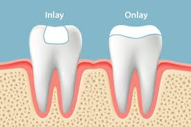 cosmetic dental procedures delray beach