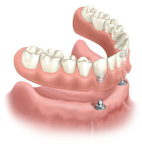 denture-types