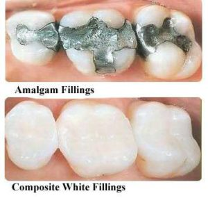 Mercury Filling Removal- Mercury Fillings vs. Composite Fillings