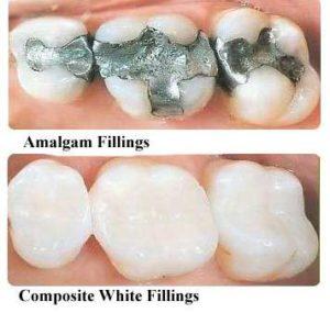 Mercury Filling Removal- Mercury Fillings vs. Composite Fillings