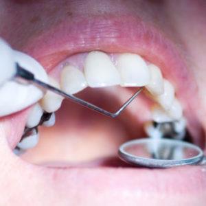 Mercury Filling Removal- dental examination