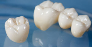 Types of Dental Crowns and Costs- All Porcelain