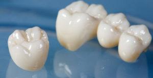 Types-of-Dental-Crowns-All-porcelain