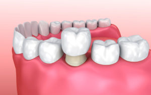 Types of Dental Crowns and Costs - Crown on prepared tooth