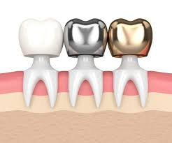 Types of Dental Crowns and Cost- types