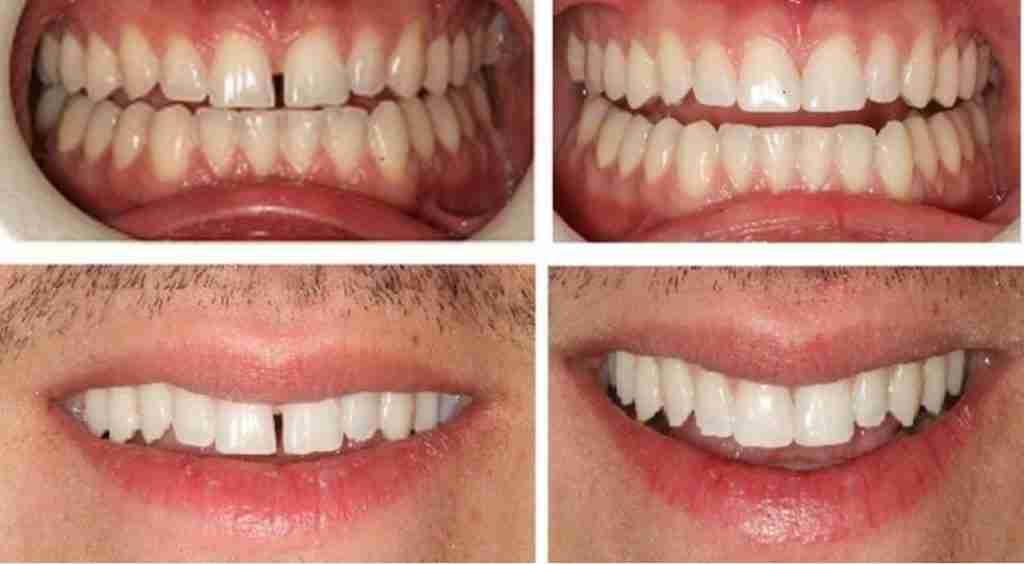 Teeth Bonding Delray Beach