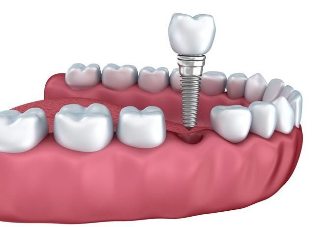 41248122 - 3d lower teeth and dental implant isolated on white