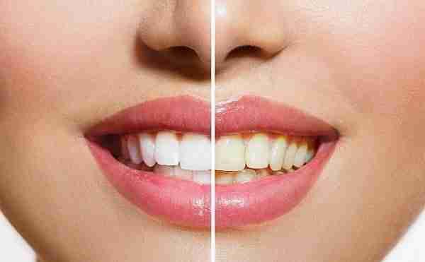 teeth-whitening-delray-beach