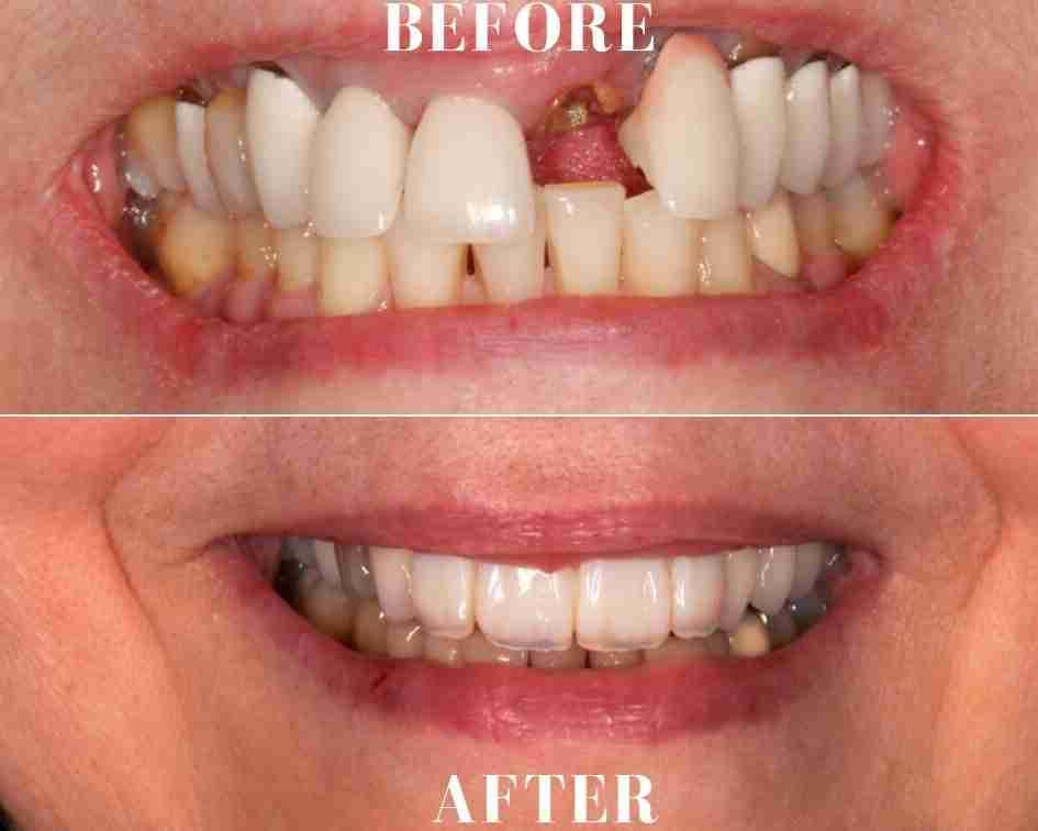 Dentures Near Me >> Best Prosthodontist Near Me Ocean Breeze Prosthodontics