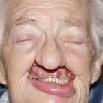 maxillofacial-prosthodontist-before-after-woman