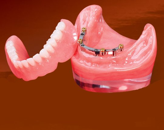 BAR OVER DENTURE BOCA RATON