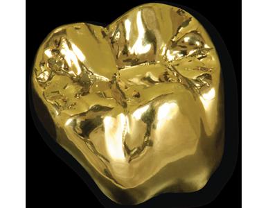 dental-crown-type-gold-crown