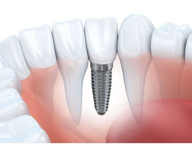 dental-implant-delray-beach
