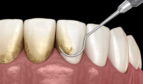 Gum Disease and Dental Implants