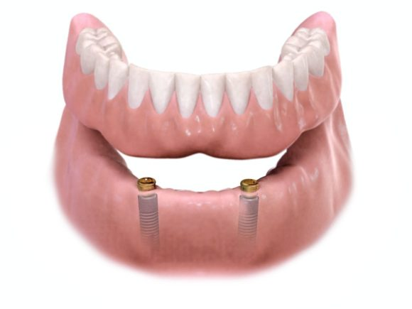 SNAP OVER DENTURE boca raton